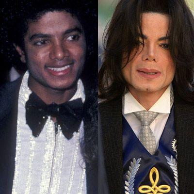 Estetik faciaların en çarpıcı örneği Michael Jackson, artık neredeyse peçeyle gezmek zorunda!
